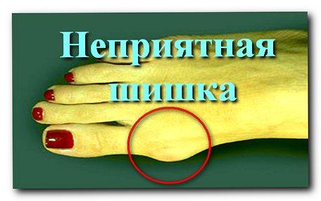 shishka678Применение йода при заболеваниях суставов и позвоночника.
