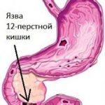 12 перстная кишка симптомы – Воспаление 12-перстной кишки: симптомы и лечение, диета
